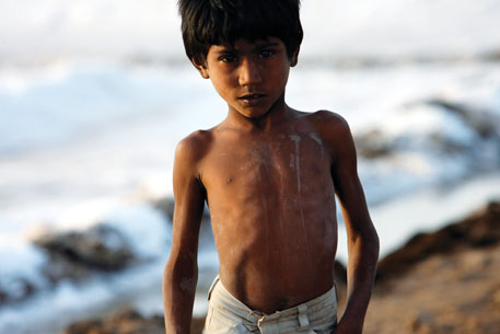 Child malnutrition is down: survey