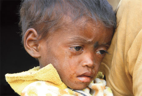 'Treat severe malnutrition at home'