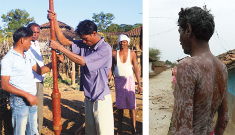 Chindi Tola residents repair a tube well corroded by acidic groundwater; (right) Shyam Singh has blisters all over his body