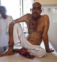 Pappu Mamman, 50, awaits his chemotherapy session. He suffers from cancer in the oesophagus