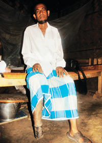 Mohammad Murad lost a leg while working at a ship-breaking yard