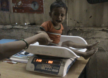 The ICDS programme considers only wasting (weight for height) as the criterion for malnourishnment, which leaves out a large number of children from getting special nutrition