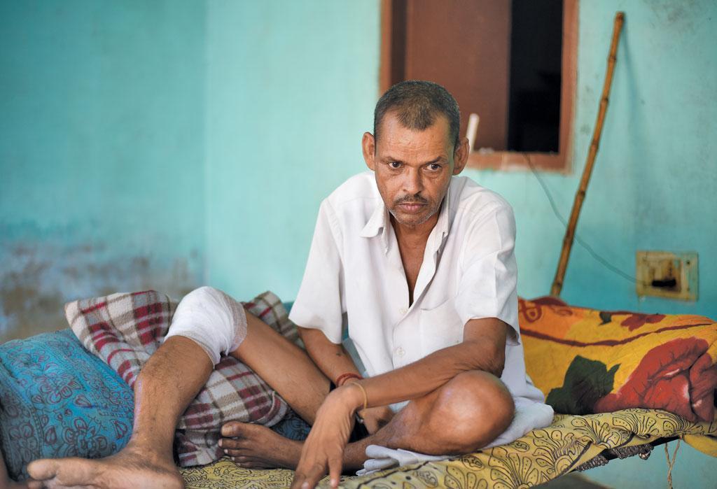 गुरुग्राम के बंधवाड़ी गांव निवासी घनश्याम दो साल से बीमार हैं। इनके परिवार का कहना है कि दूषित पानी बीमारी का कारण है (आदित्यन पीसी / सीएसई )