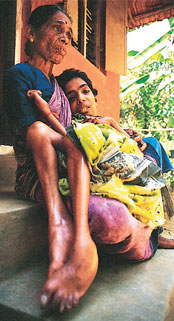 Relief for endosulfan victims