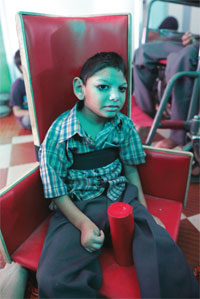 Mohammed Umer is the third-generation victim of the gas tragedy. The five-year-old has difficulties balancing himself and has a stunted growth