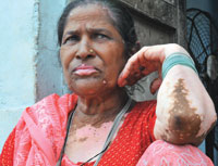 Saraju Nisha, 60, has developed white patches on skin. She lives in Chilika Daad village of Sonbhadra