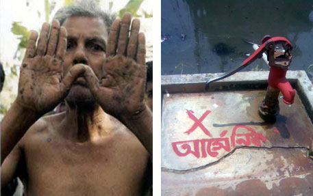 The skin disorders, called keratosis and spotted melanosis, are the initial symptoms of arsenic poisoning (left), Volunteers have painted red some of the tubewells that pump arsenic-contaminated water (right) ((photos: Swapan Kumar Palit)