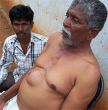 Jangaiah, 60, has developed a huge painful lump, resembling a keloid, at the site of the scar from his bypass surgery. The insurance does not cover post surgery treatment. He suffers in silence as his family is already under heavy debt