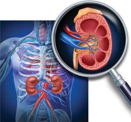 Kidney conundrum