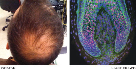 Researchers have been able to take human dermal papilla cells (those inside the base of human hair follicles) and use them to create new hair