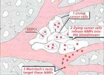 Tracking tumours
