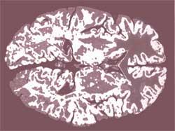 Brain-teasers