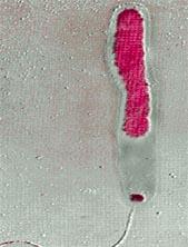 The destructive cholera bacter (Credit: Science Photo Library)