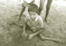 A victim of polio: can vaccin (Credit: Pradip Saha)