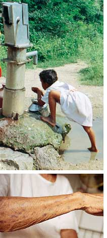 Now arsenic in Karnataka
