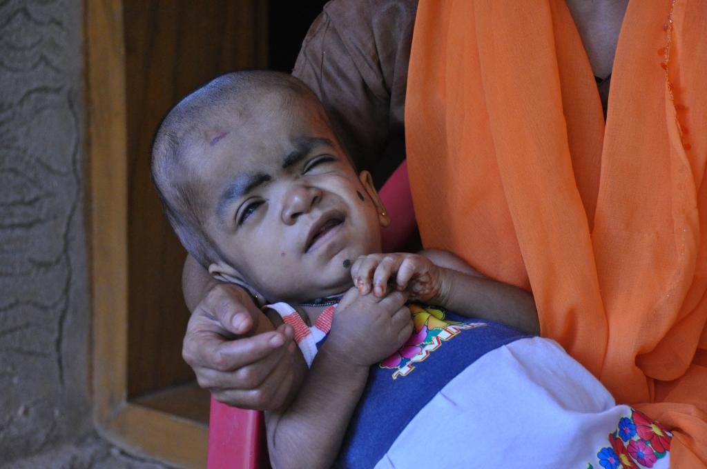 Two-year-old Saariya suffers from hydrocephalus and is enlisted in the beneficiary list (Savvy Soumya Misra/CSE) (January 2011)