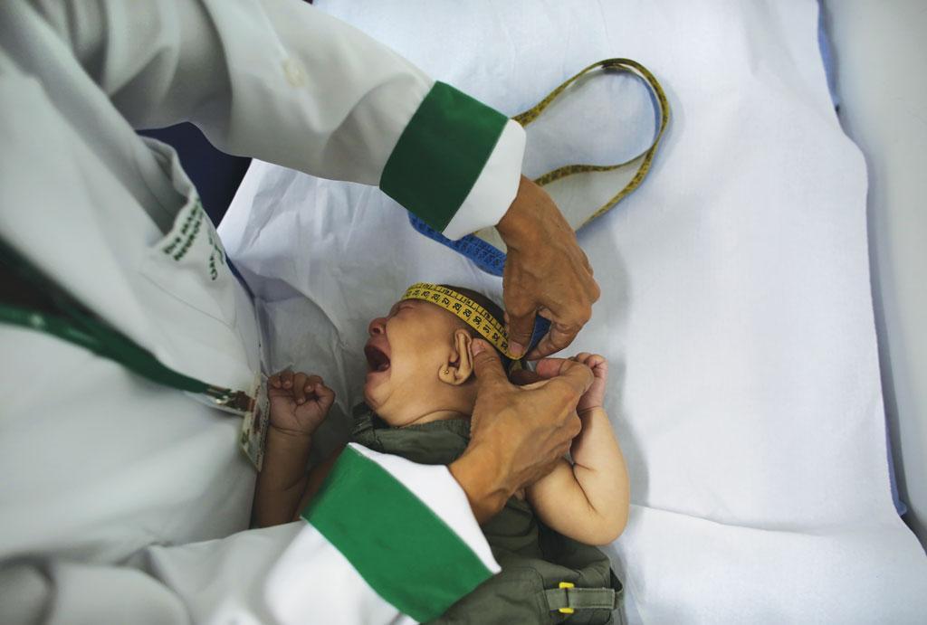जीका वायरस गर्भ में पलने वाले बच्चे पर असर डालता है। पीड़ित बच्चों के सिर का आकार स्वस्थ बच्चों की तुलना मे छोटा होता है (रॉयटर्स )