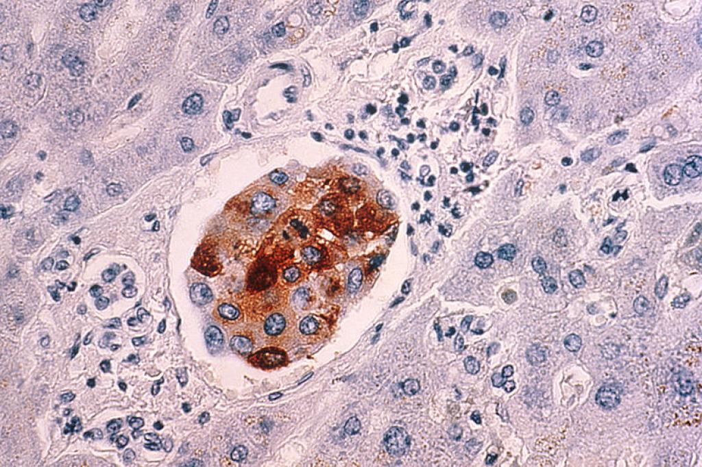 The new study delineates the exact mechanism of resistance in cells from cervical cancer caused by Human Papilloma Virus (HPV). Credit: Wikimedia Commons