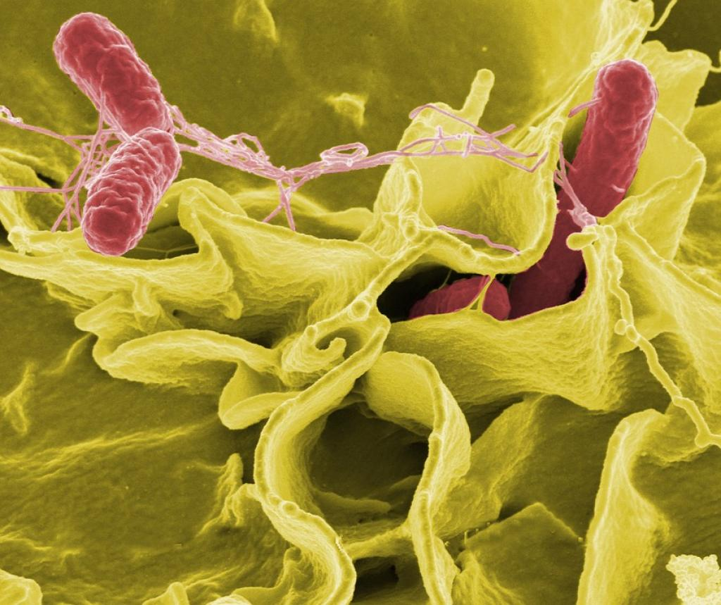 The bacteria inhibits the growth of Salmonella (above), the organism that causes food poisoning