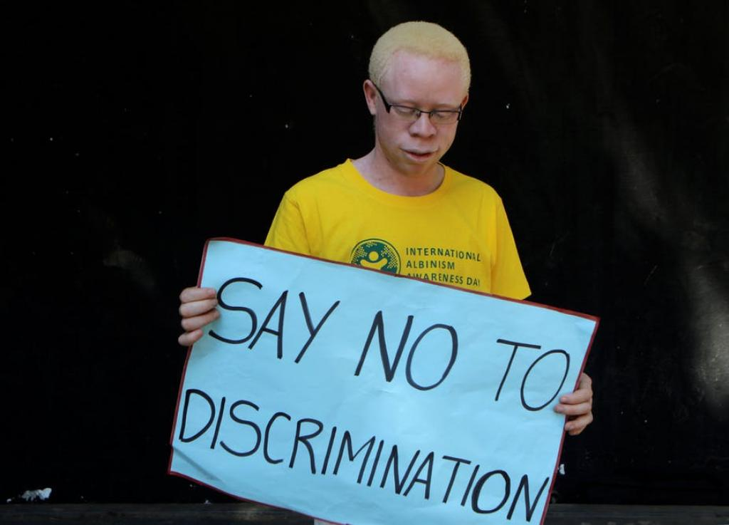 Witchcraft related beliefs pose serious human rights violations for people with Albinism