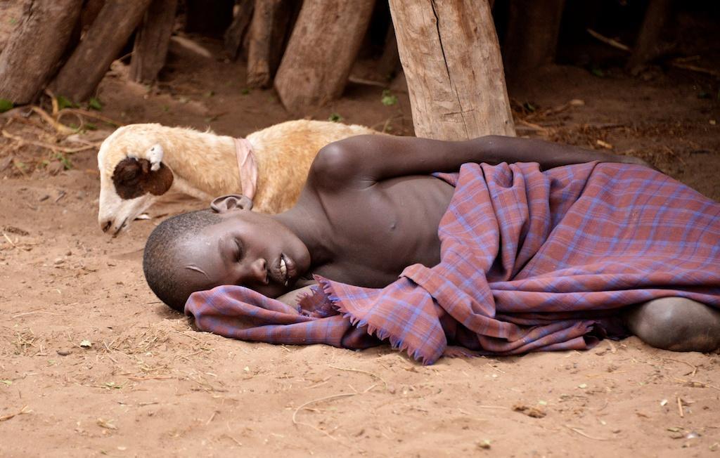 A malaria patient in Ethiopia  Credit: WIkimedia
