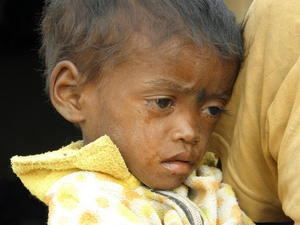 Malnutrition among tribals