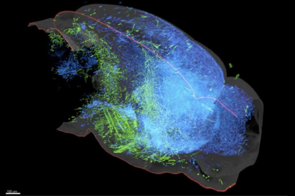 Stanford study reveals that the brain's serotonin system—which regulates everything from our moods to our movements—is made up of multiple parallel pathways that affect the brain in different, and sometimes opposing, ways. A 3D rendering of the serotonin system in the left hemisphere of a mouse brain reveals two groups of serotonin neurons that project to either cortical regions (blue) or subcortical regions (green) while rarely crossing into the other's domain. Image credit: Jing Ren