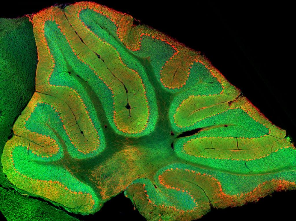 Researchers long believed that the cerebellum did little more than process our senses and control our muscles. Stanford researchers have found a previously unknown, cognitive role for the cerebellum's granule cells, which show up as green in this image. Image credit: Mark Wagner