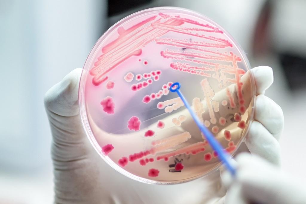 New nanosilver coating that can kill bacteria developed. Photo: Getty Images