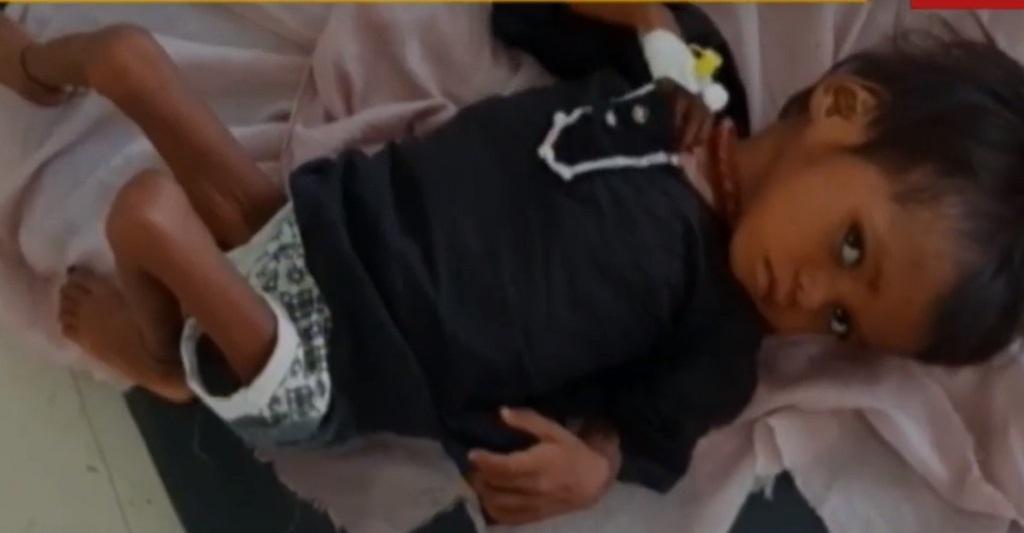 श्योपुर पोषण पुनर्वास केंद्र में भर्ती बच्ची। फोटो: मनीष चंद्र मिश्रा