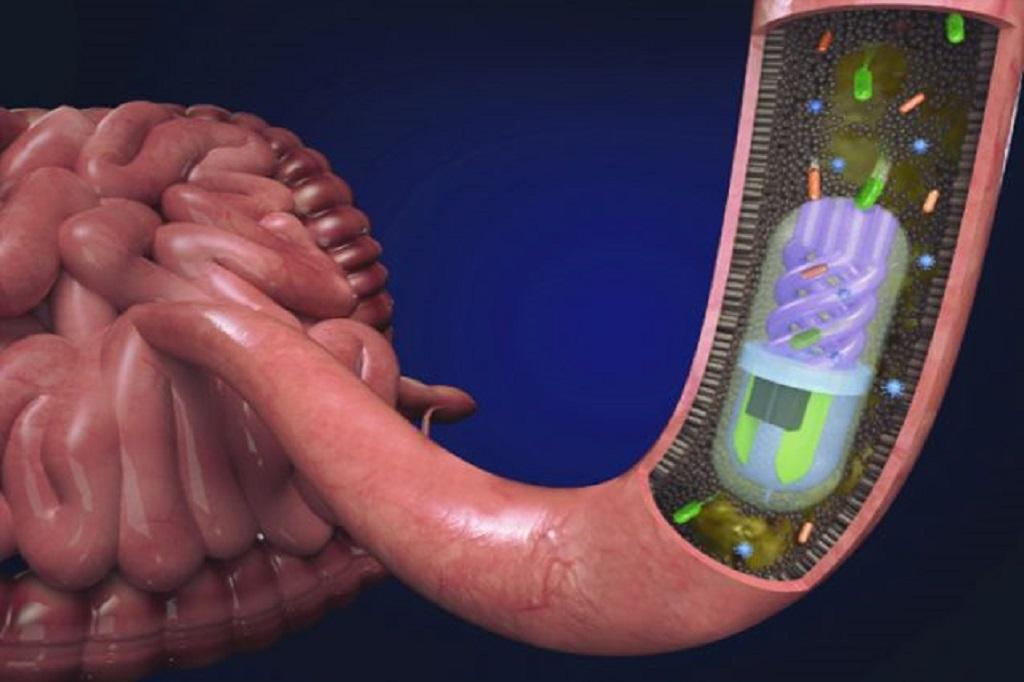 Microbiome sampling pill in the small intestine. Photo: Nano Lab, Tufts University