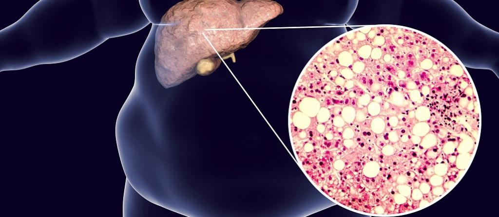 Obesity is one of the risk factors for non-alcoholic fatty liver disease. Kateryna Kon/Shutterstock.com