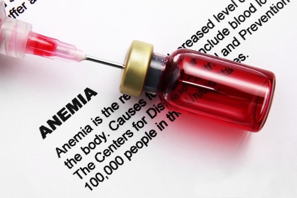 The inflammation-induced anaemia occurs due to shorter life span of red blood cells. Photo: Getty Images