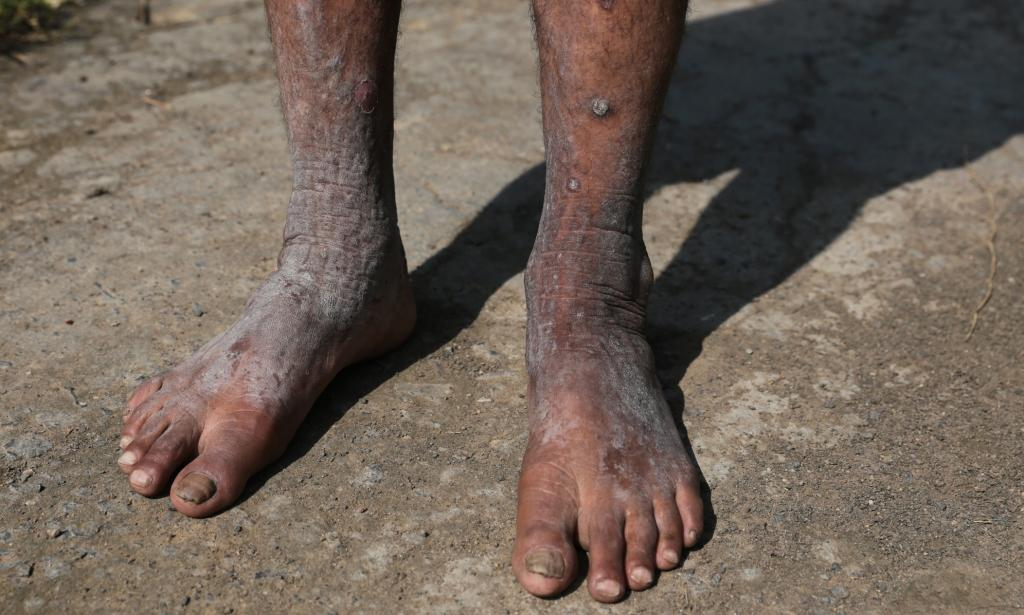 A person whose skin was damaged due to exposure to methyl isocyanate. Photo: Vikas Choudhary