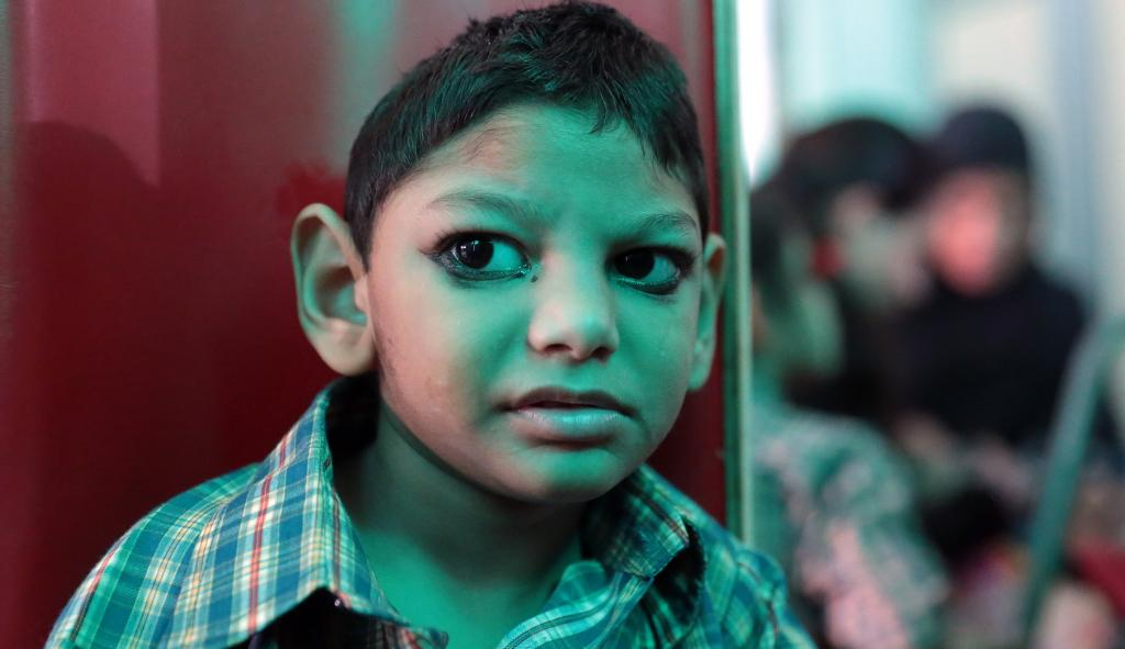 A child affected due to the Bhopal Gas Tragedy. Photo: Vikas Choudhary