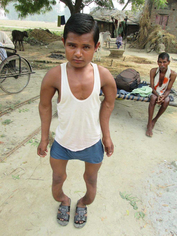 उत्तर प्रदेश के फतेहपुर के गांव चौहट्टा निवासी पवन फ्लरोसिस से पीड़ित हैं। उनकी मां व बहन की मौत का कारण भी फ्लरोसिस बताया गया है। फोटो: अनिल सिन्दूर