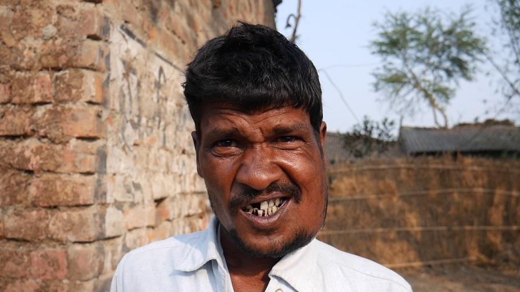 बिहार के सहरसा जिले के सत्तरकटैया प्रखंड का गांव सहरबा, जहां लोग कैंसर के शिकार हैं। फोटो: पुष्यमित्र