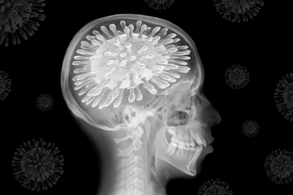 The novel coronavirus is affecting our brains, whether we've caught it or not. Image: Teo Tarras / Shutterstock / The Conversation