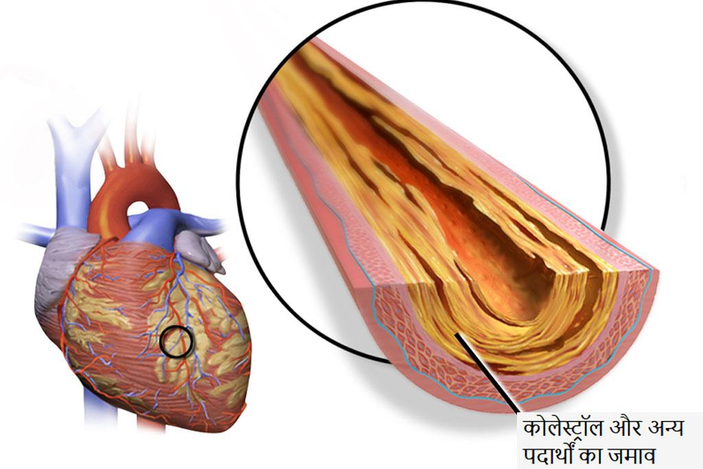 What is heart attack How can you avoid it?