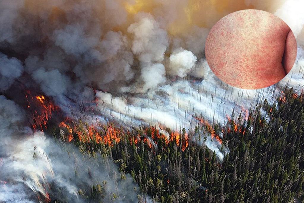 जंगल की आग के धुएं से हो सकता है त्वचा रोग: अध्ययन