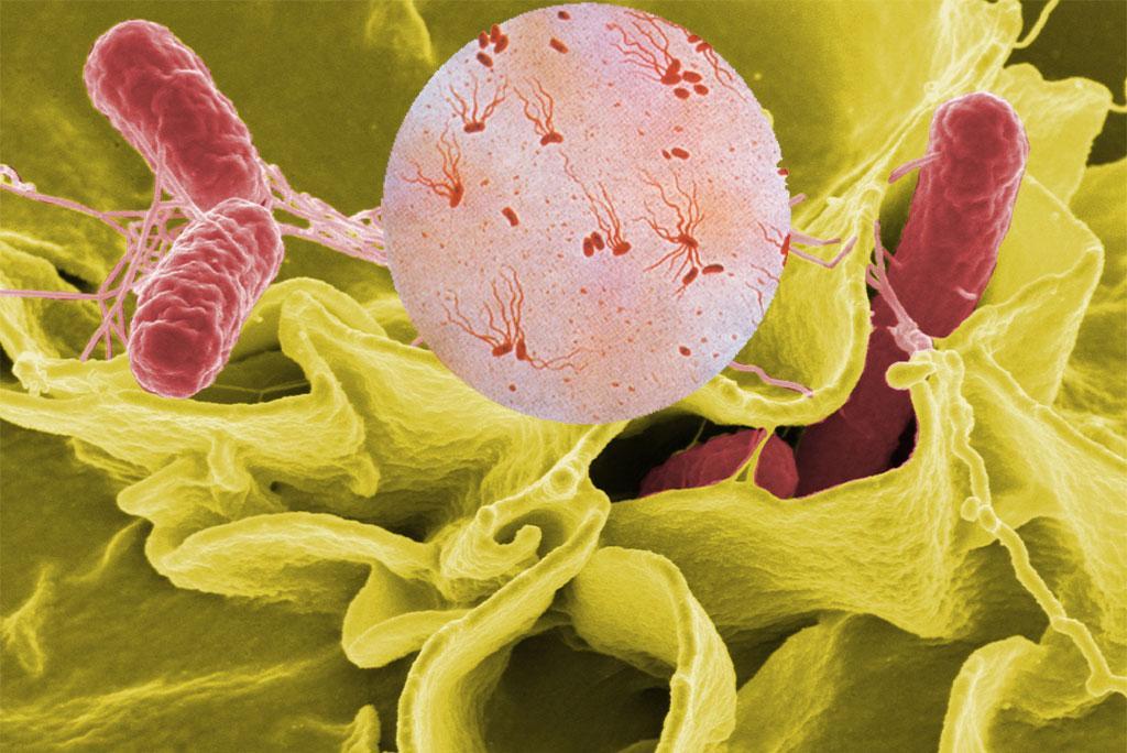 नए जीनोमिक उपाय से दवा प्रतिरोधी टाइफाइड की बीमारी से पार पाया जा सकता है