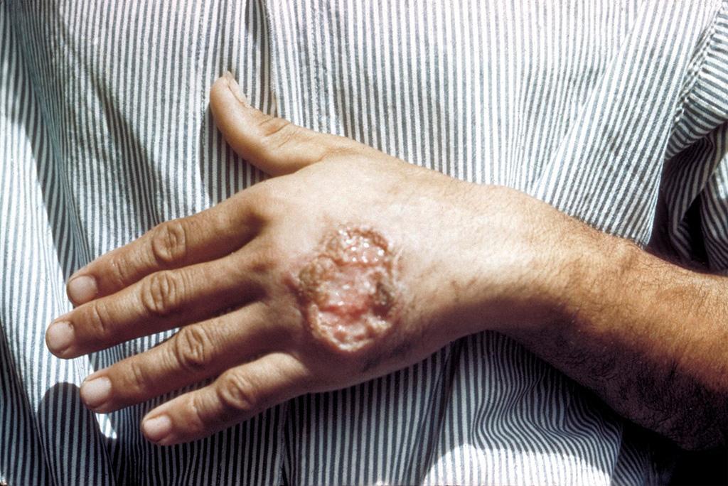 भारतीय वैज्ञानिकों ने विसरल लीशमैनियासिस बीमारी के उपचार का तरीका खोजा