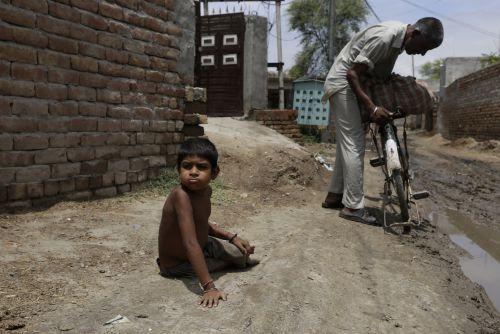 Acute malnutrition worsened among children: NFHS-5