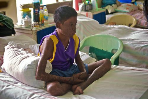 India develops world's first vaccine exclusively for leprosy