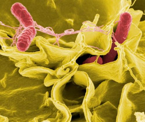 Salmonella Credit: Wikimedia Commons
