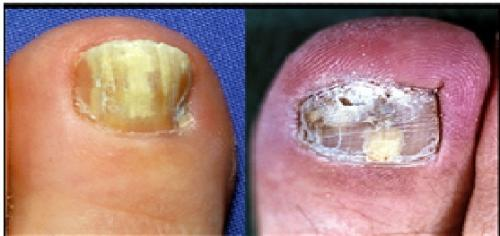 Fungus around toe nails can kill bacteria that cause life threatening infections
