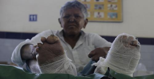 Did you know leprosy patients can be detained for unspecified periods?