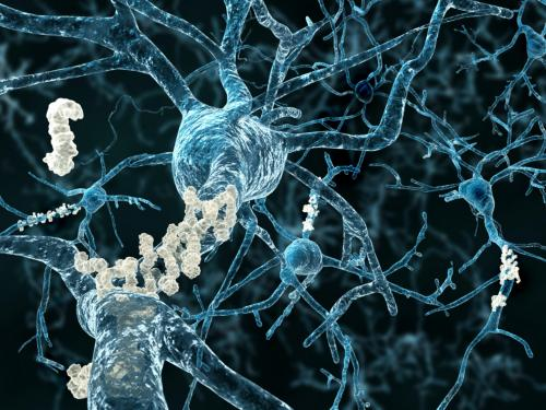 Alzheimer protein can be transmitted, says the study