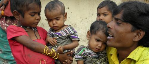 2 of 3 child deaths in India due to malnutrition: Report