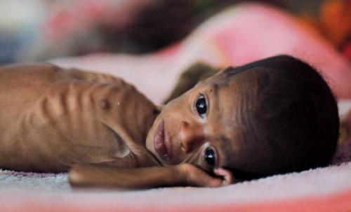 कुपोषण: भारत में कब बदलेंगे हालात